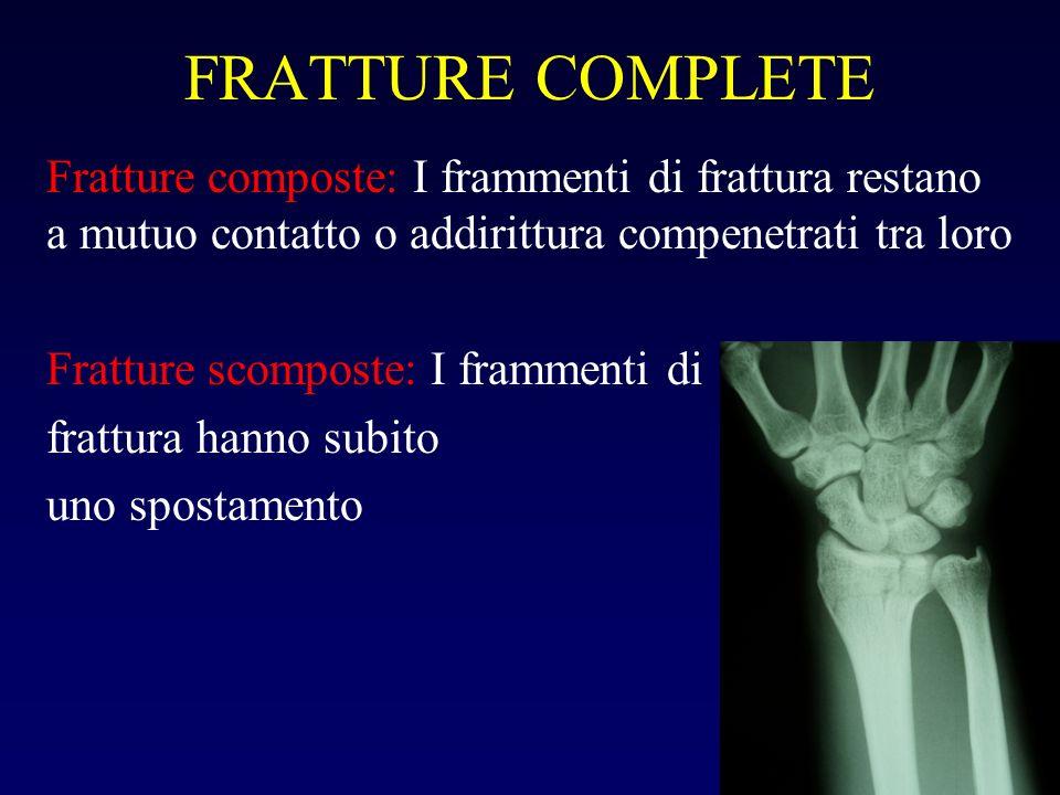 FRATTURE COMPLETE Fratture composte: I frammenti di frattura restano a mutuo contatto o addirittura compenetrati tra loro.