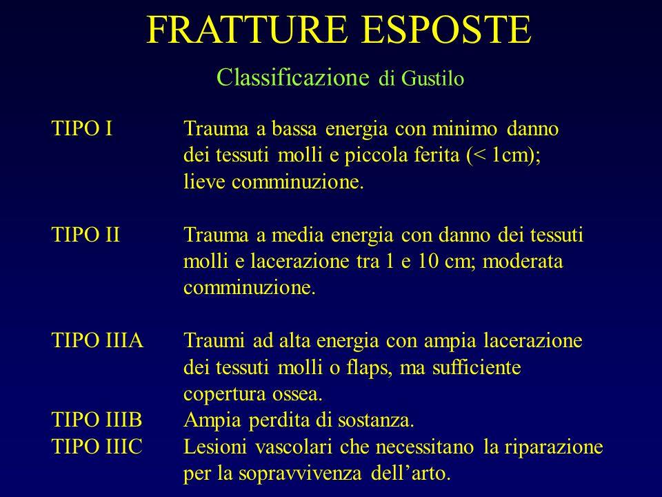 FRATTURE ESPOSTE Classificazione di Gustilo