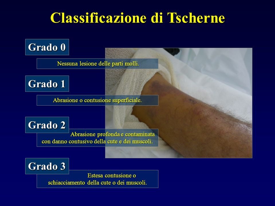 Classificazione di Tscherne
