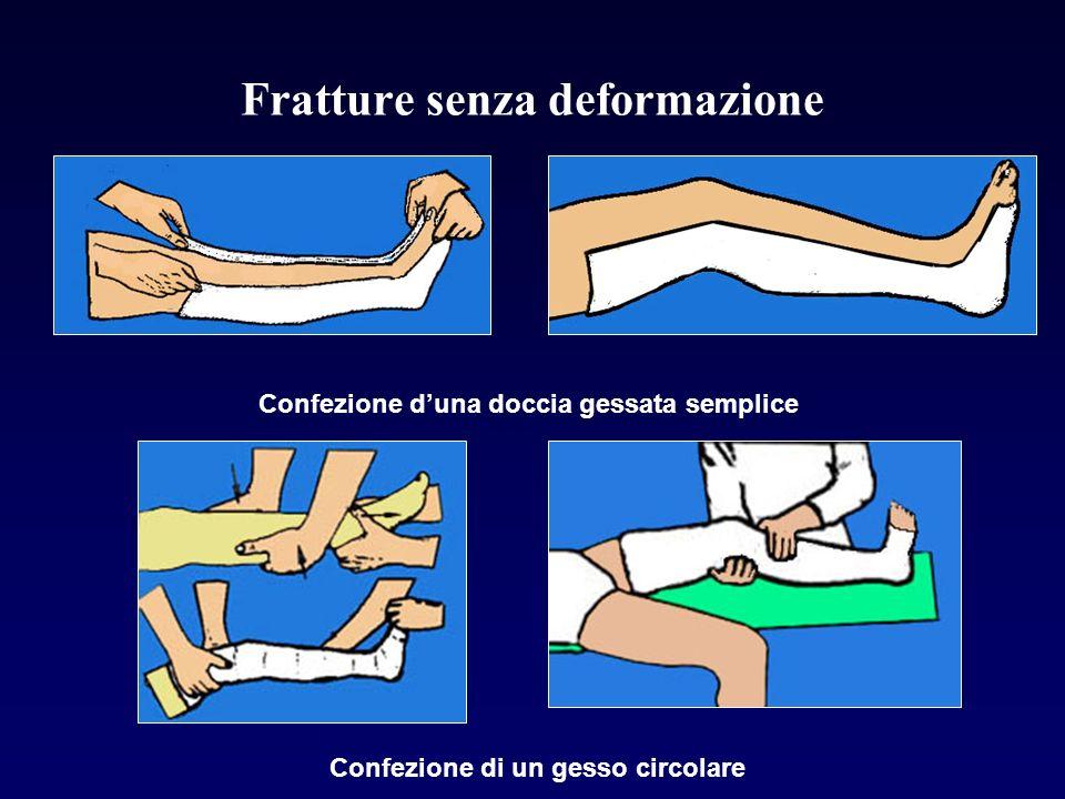 Fratture senza deformazione