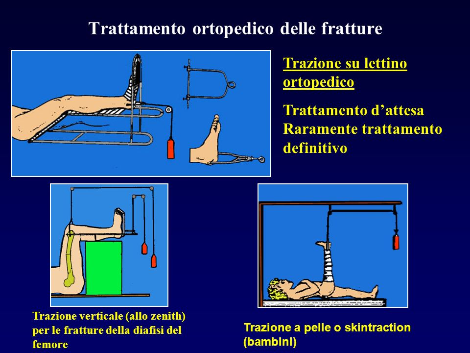 Trattamento ortopedico delle fratture