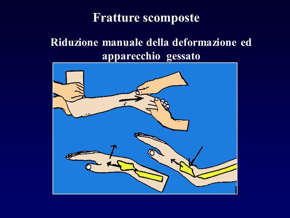 Riduzione manuale della deformazione ed apparecchio gessato