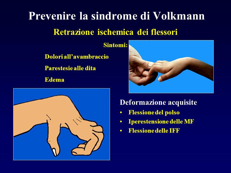 Prevenire la sindrome di Volkmann