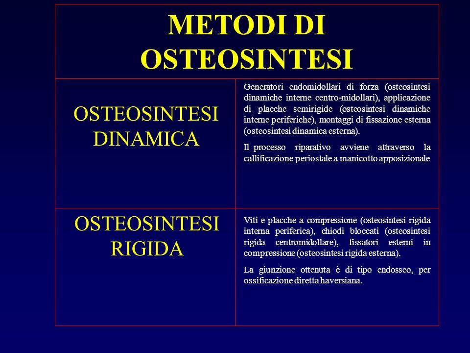 METODI DI OSTEOSINTESI