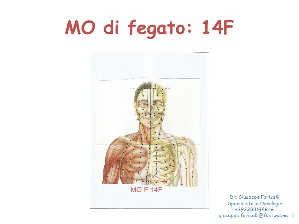 MO di fegato: 14F Dr. Giuseppe Fariselli Specialista in Oncologia