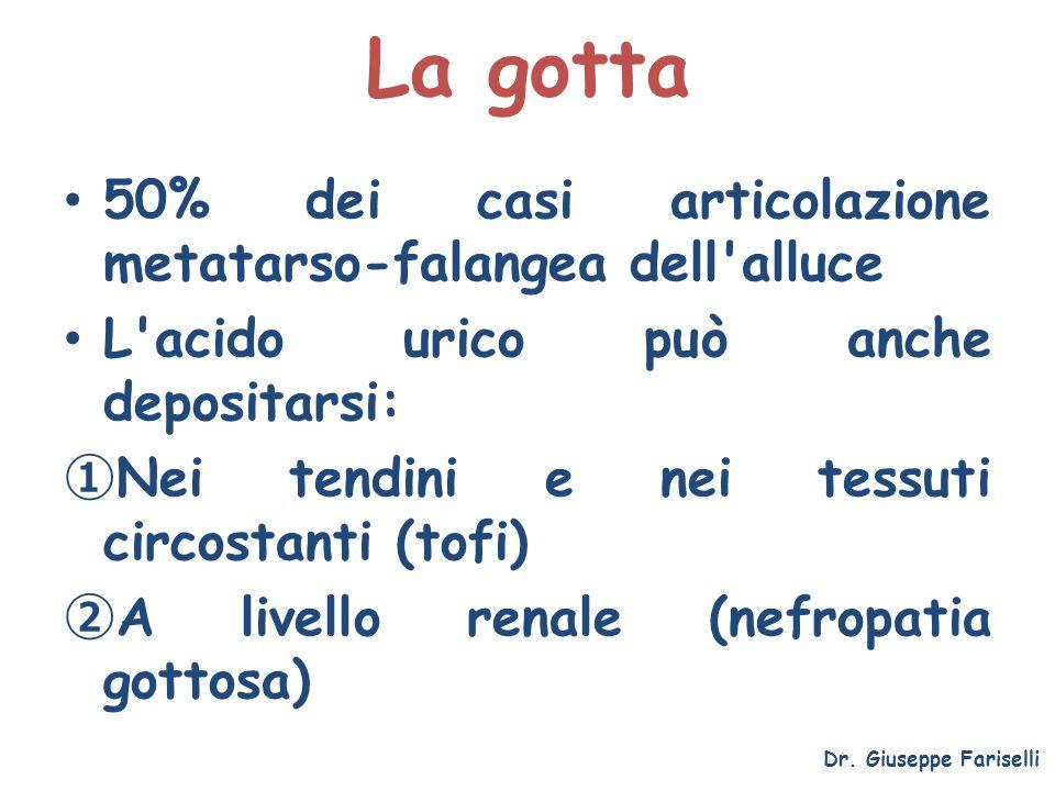 La gotta 50% dei casi articolazione metatarso-falangea dell alluce