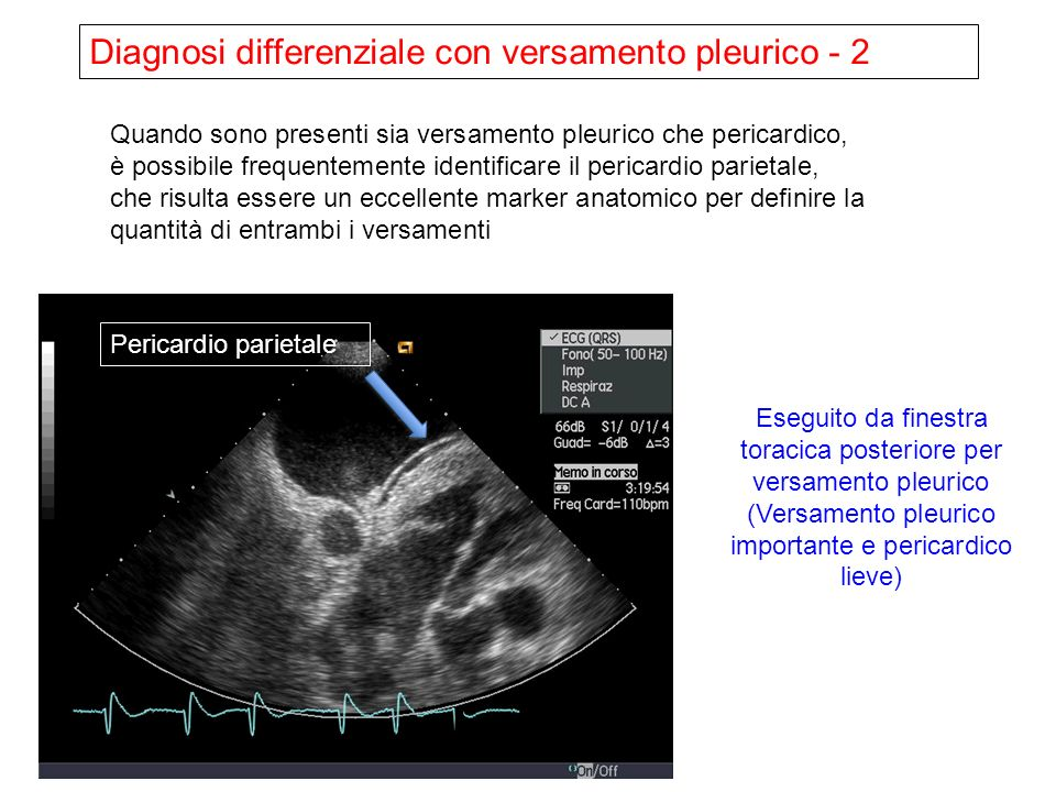 Diagnosi differenziale con versamento pleurico - 2
