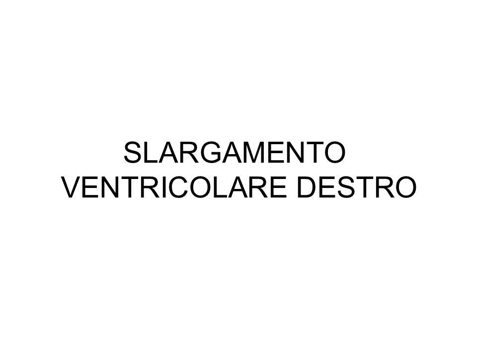 SLARGAMENTO VENTRICOLARE DESTRO