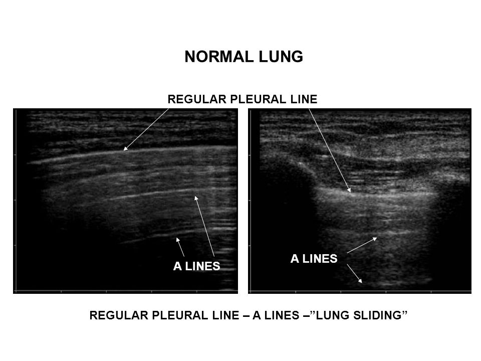 REGULAR PLEURAL LINE – A LINES – LUNG SLIDING