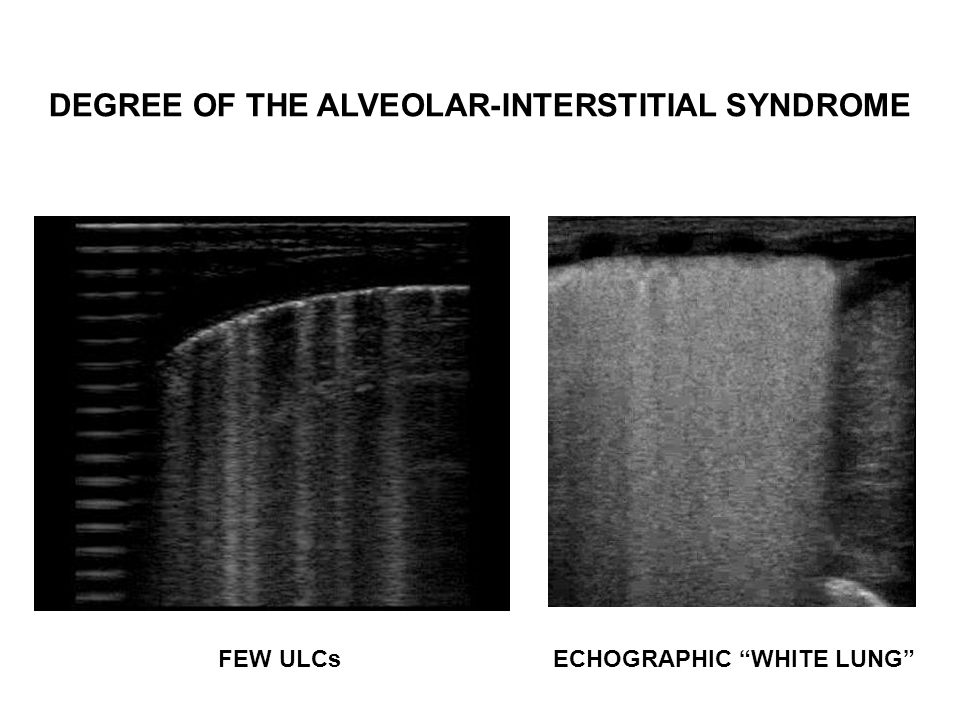 DEGREE OF THE ALVEOLAR-INTERSTITIAL SYNDROME