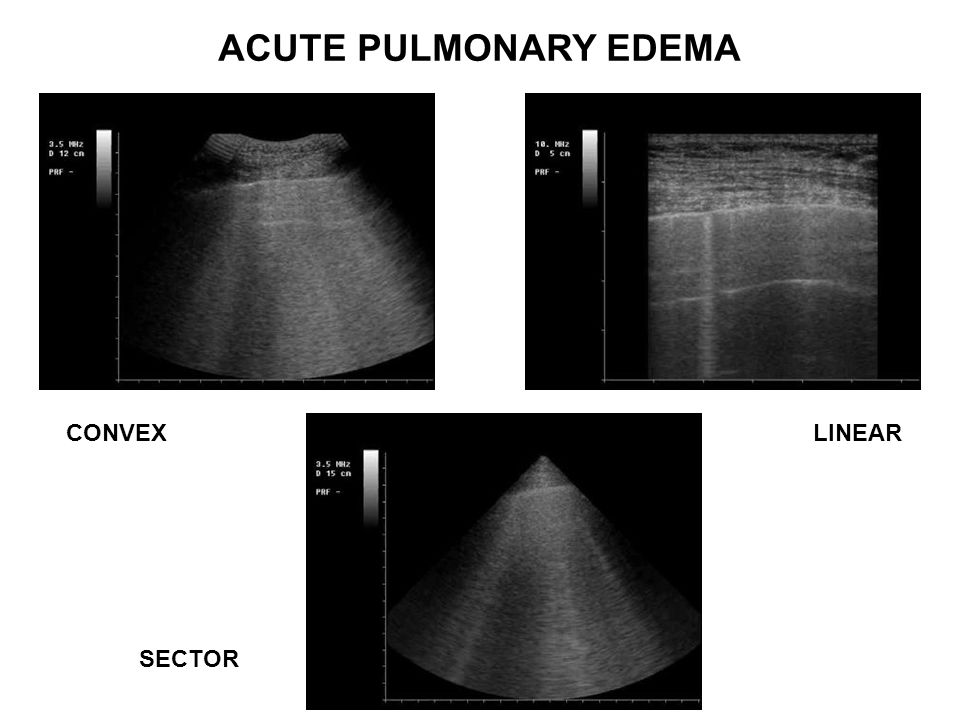 ACUTE PULMONARY EDEMA CONVEX LINEAR SECTOR
