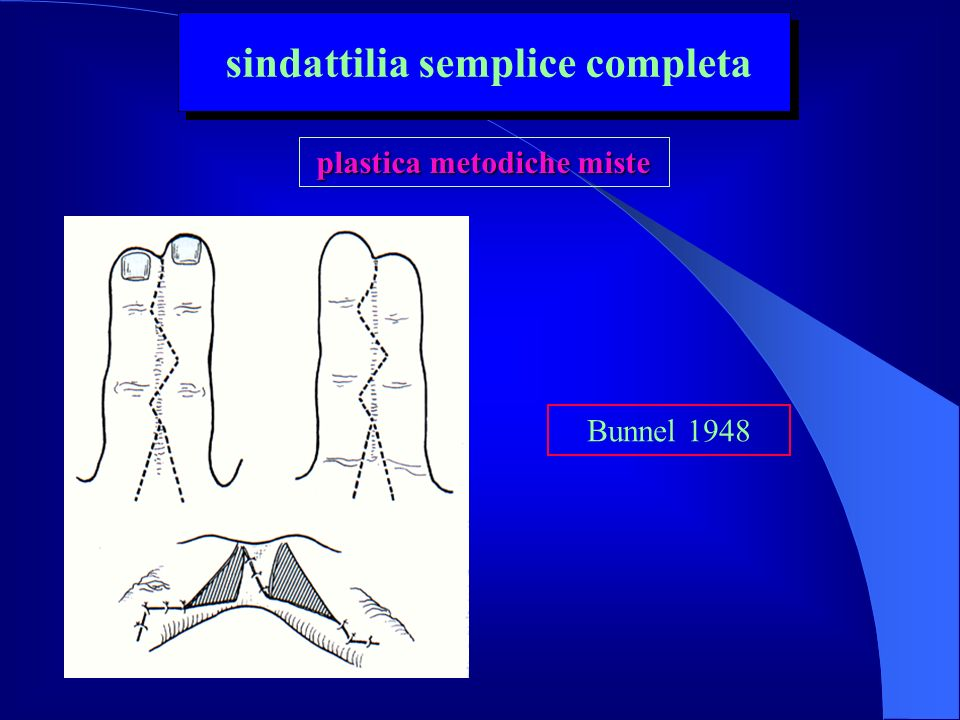sindattilia semplice completa plastica metodiche miste