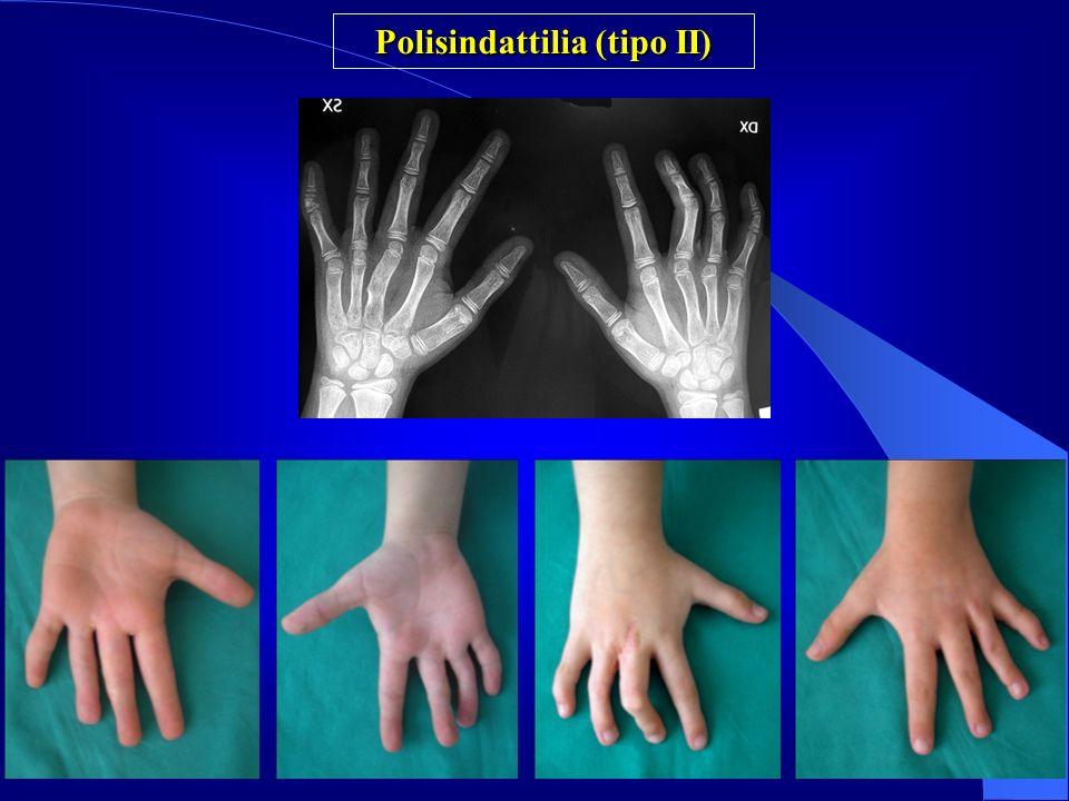Polisindattilia (tipo II)