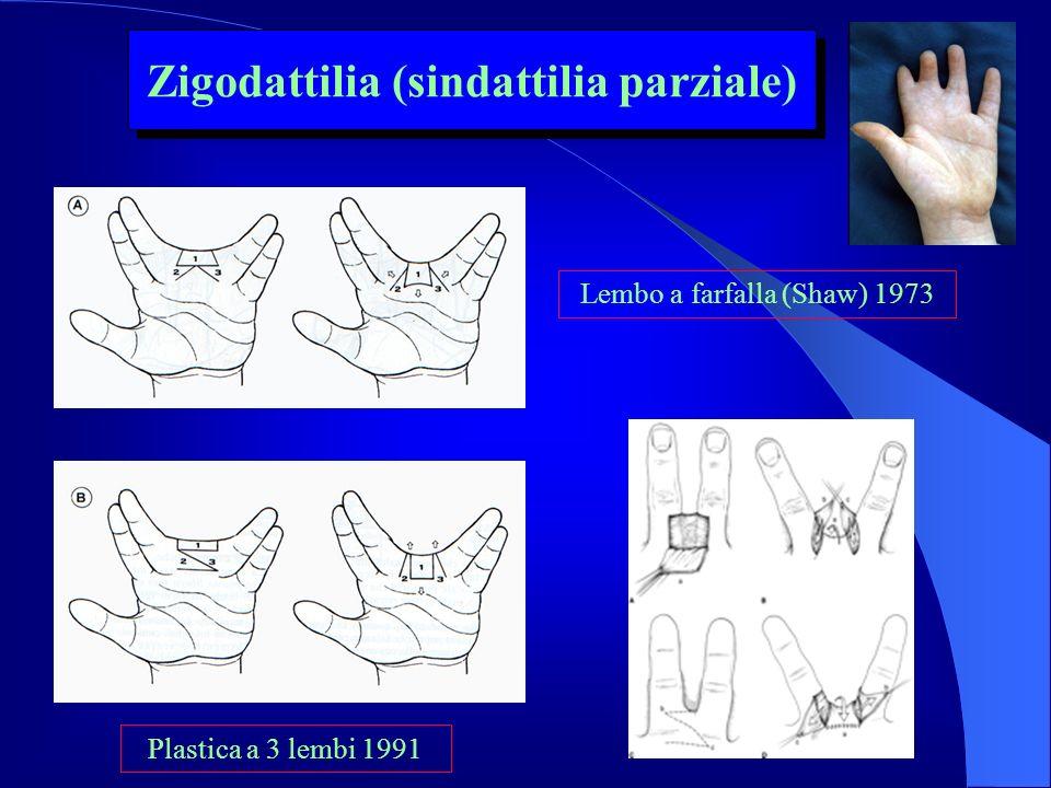 Zigodattilia (sindattilia parziale)