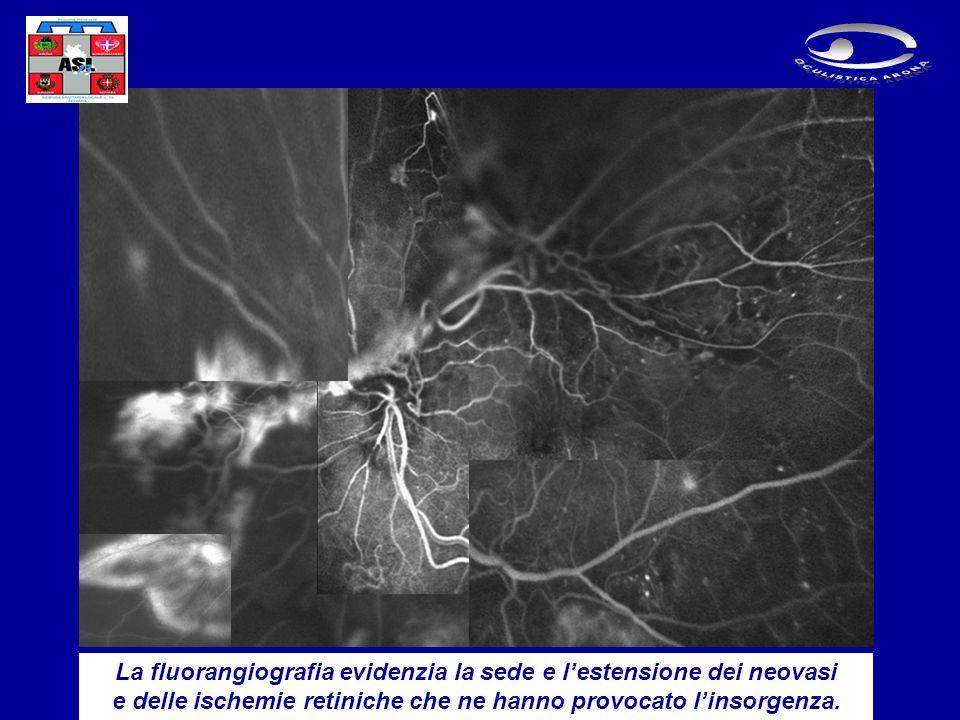 La fluorangiografia evidenzia la sede e l'estensione dei neovasi