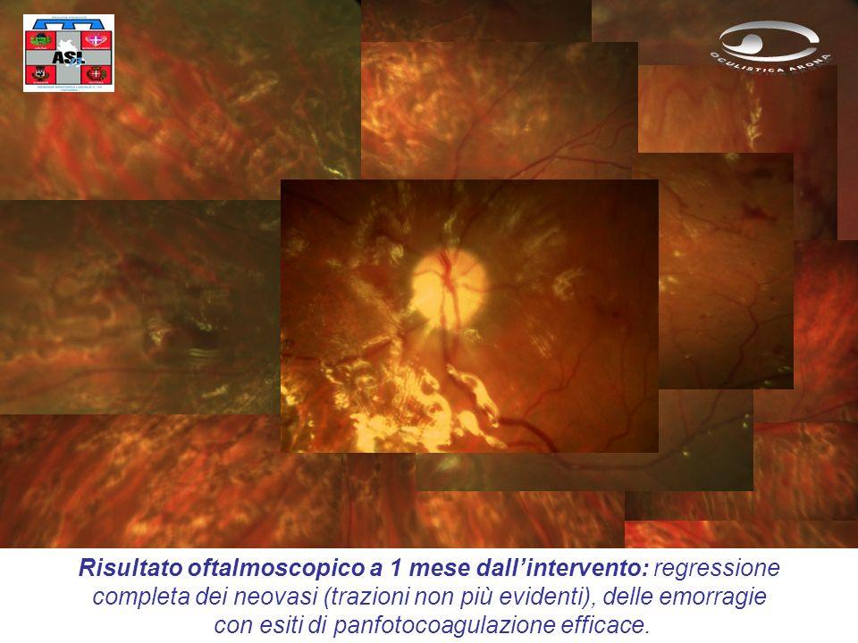 Risultato oftalmoscopico a 1 mese dall'intervento: regressione