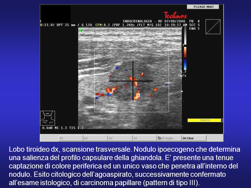 Lobo tiroideo dx, scansione trasversale
