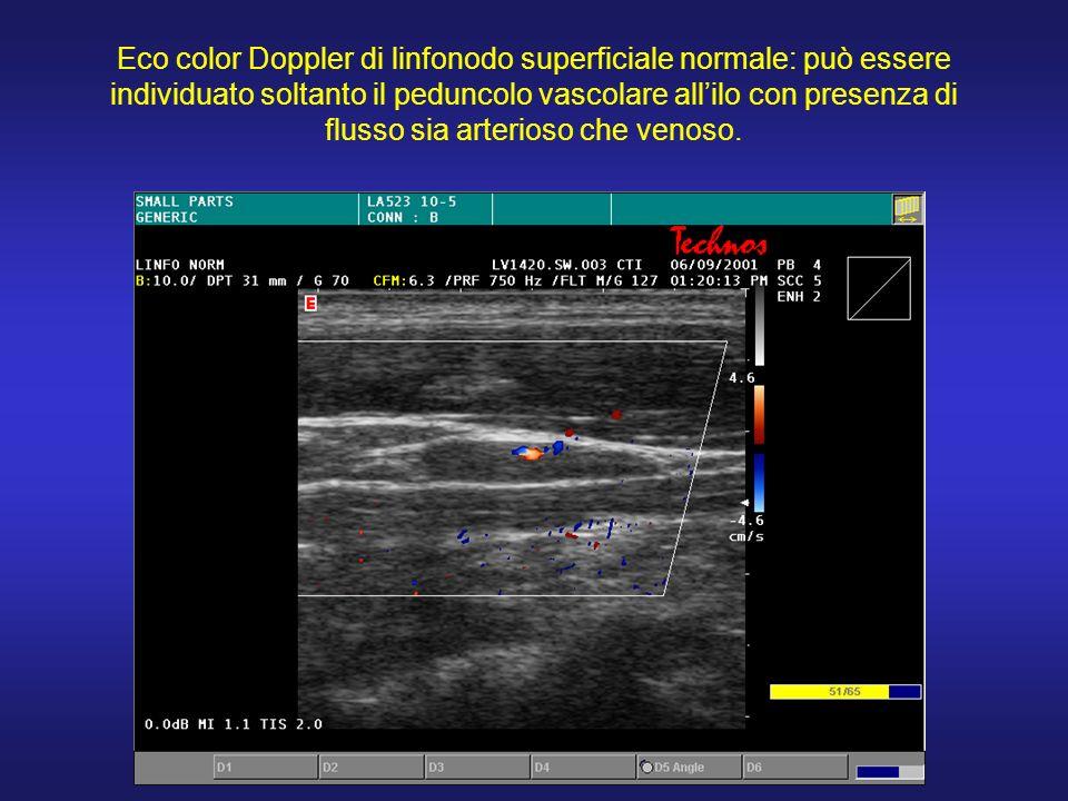 Eco color Doppler di linfonodo superficiale normale: può essere individuato soltanto il peduncolo vascolare all'ilo con presenza di flusso sia arterioso che venoso.