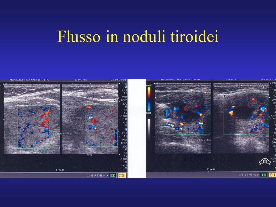 Flusso in noduli tiroidei