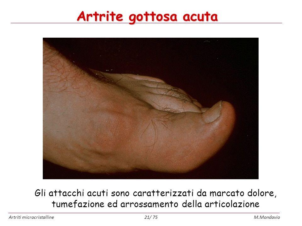 Artrite gottosa acuta Gli attacchi acuti sono caratterizzati da marcato dolore, tumefazione ed arrossamento della articolazione.