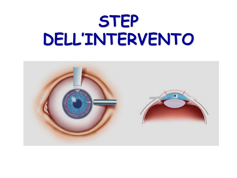 STEP DELL'INTERVENTO