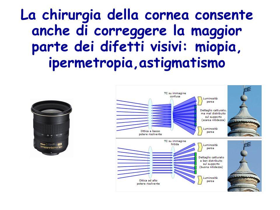 La chirurgia della cornea consente anche di correggere la maggior parte dei difetti visivi: miopia, ipermetropia,astigmatismo