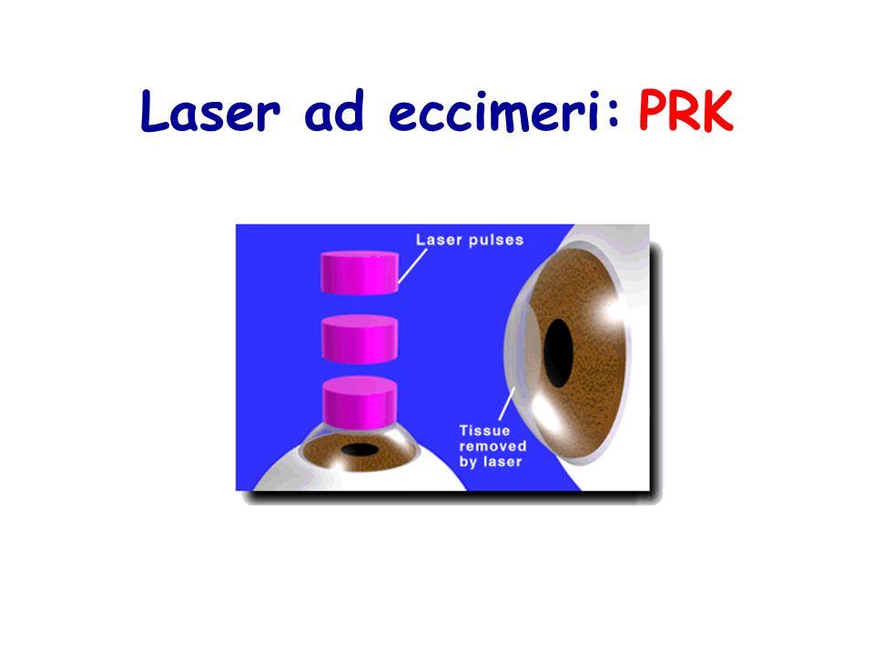 Laser ad eccimeri: PRK