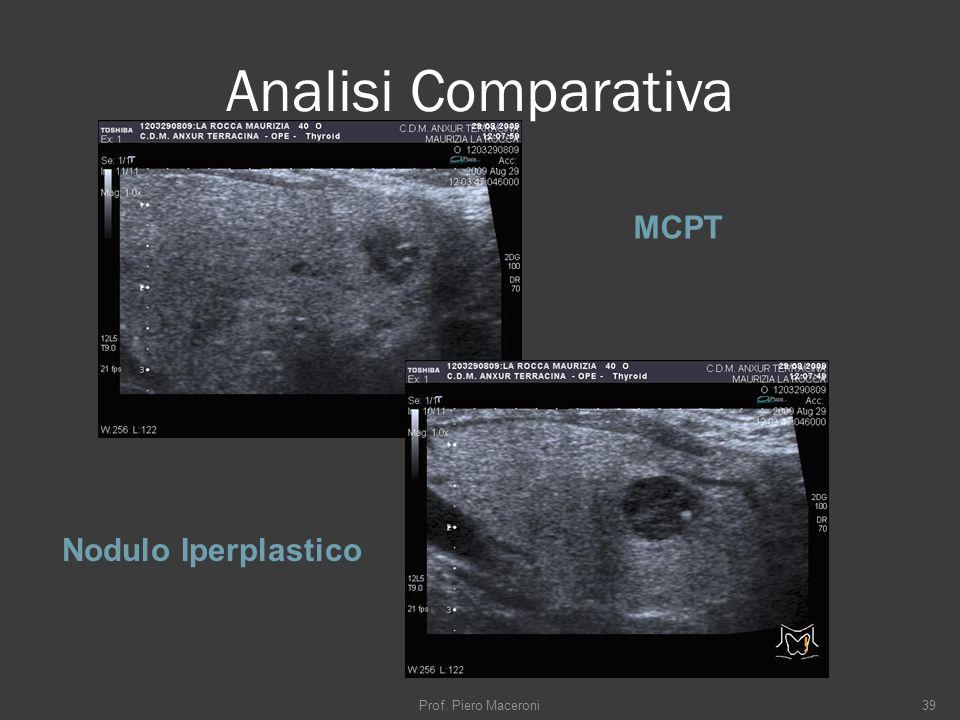 Analisi Comparativa MCPT Nodulo Iperplastico Prof. Piero Maceroni