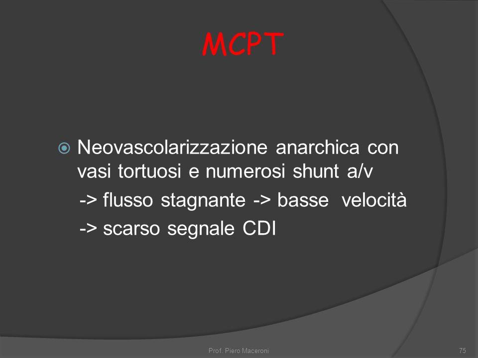 MCPT Neovascolarizzazione anarchica con vasi tortuosi e numerosi shunt a/v. -> flusso stagnante -> basse velocità.