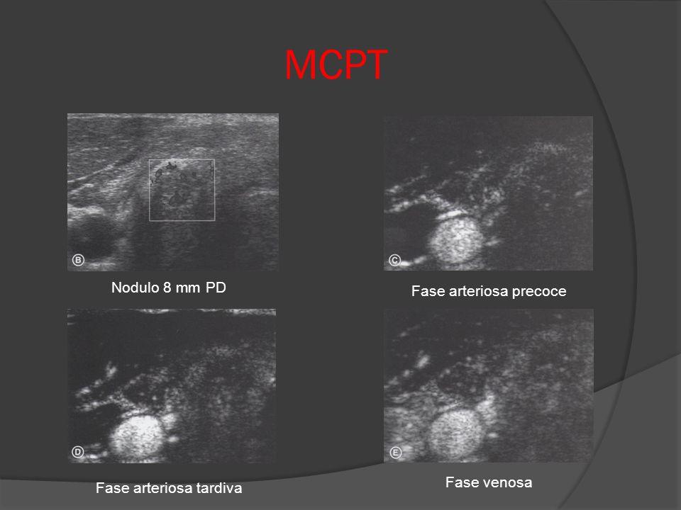 MCPT Nodulo 8 mm PD Fase arteriosa precoce Fase venosa