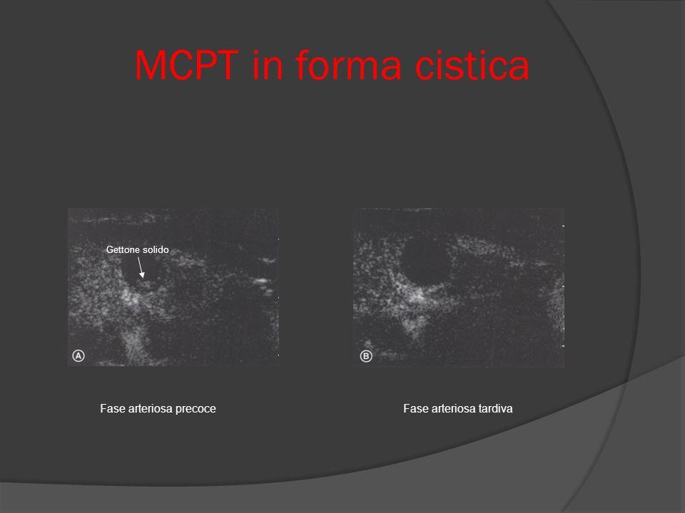 MCPT in forma cistica Fase arteriosa precoce Fase arteriosa tardiva