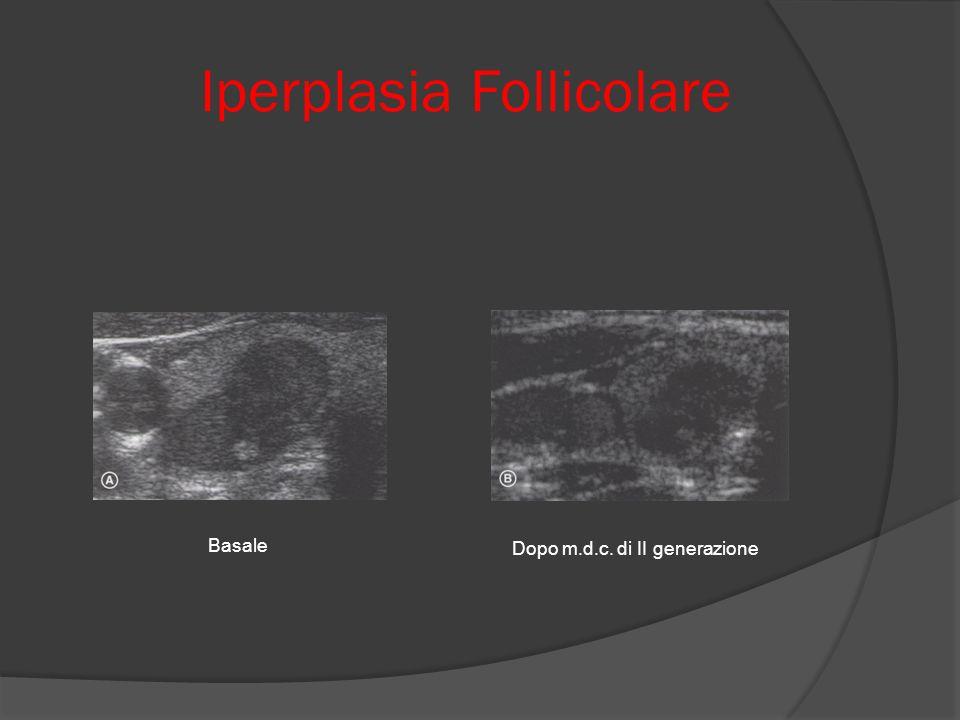 Iperplasia Follicolare
