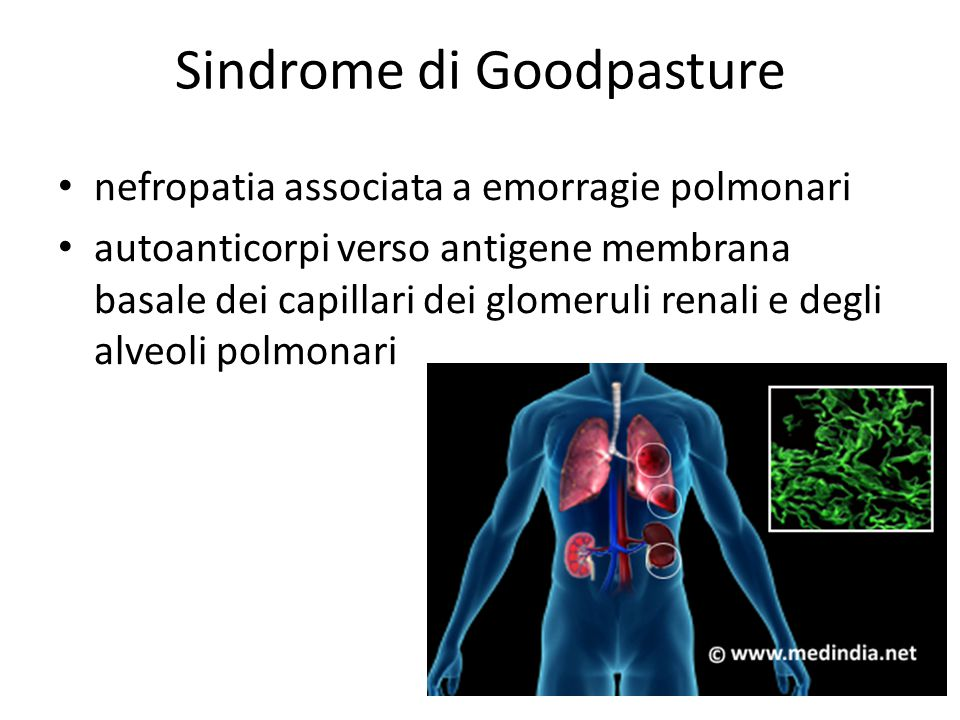 Sindrome di Goodpasture