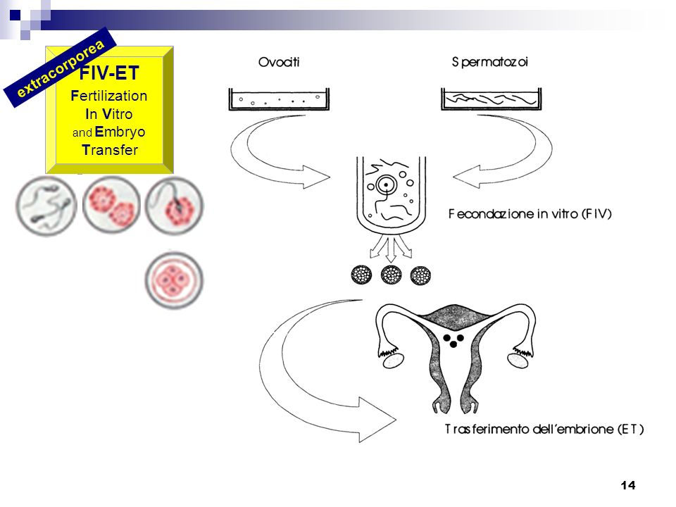 FIV-ET Fertilization In Vitro and Embryo Transfer extracorporea