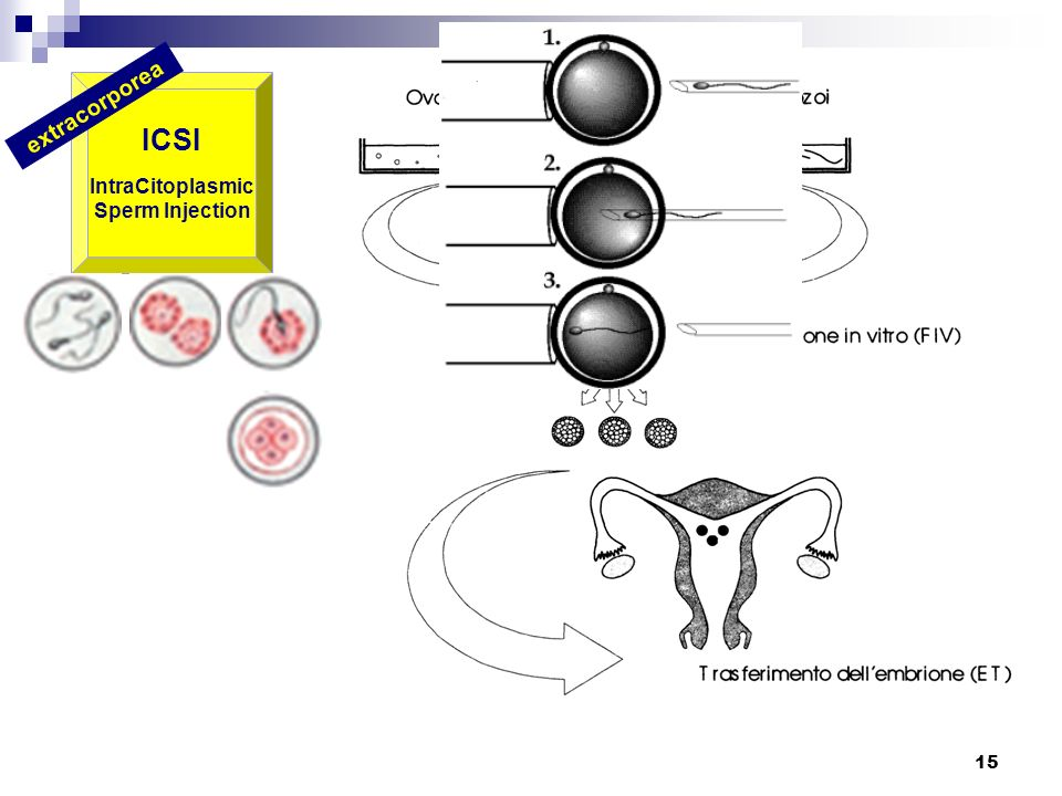 ICSI IntraCitoplasmic Sperm Injection extracorporea
