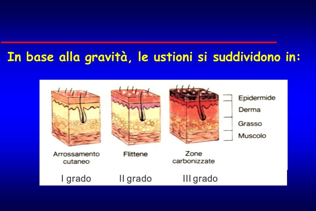 In base alla gravità, le ustioni si suddividono in: