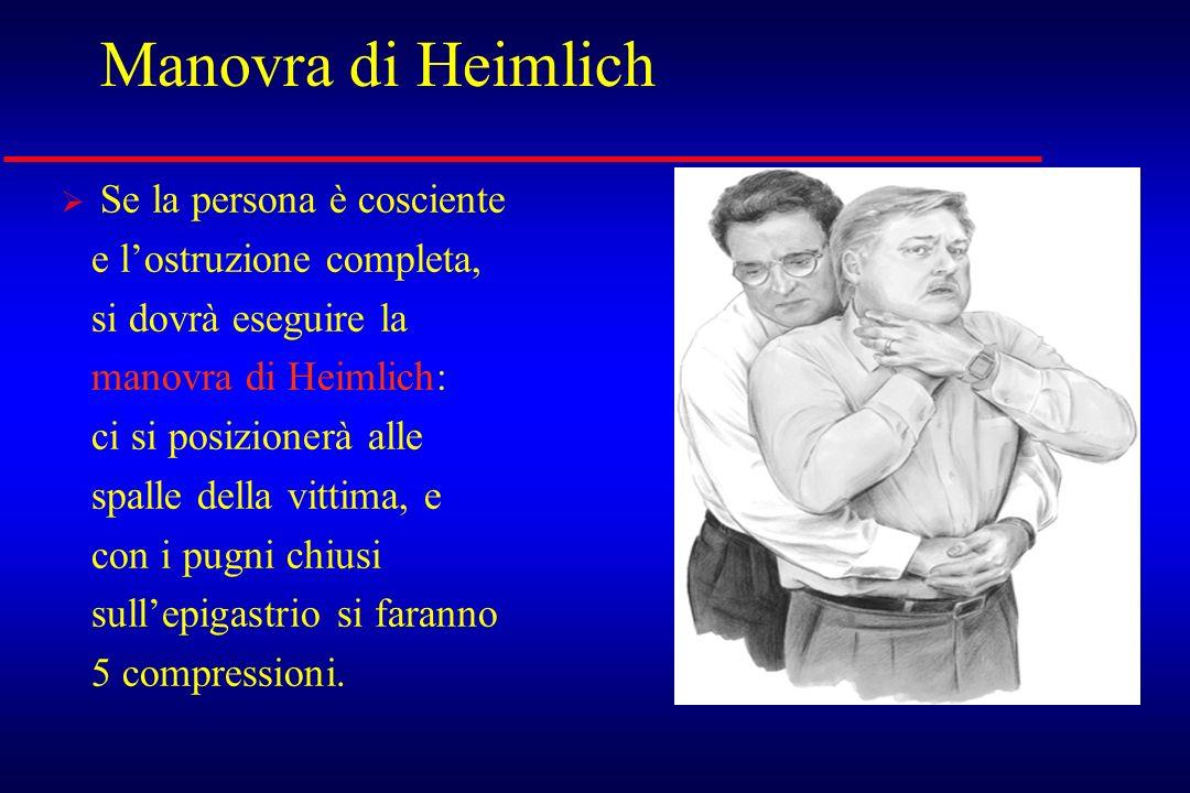 Manovra di Heimlich Se la persona è cosciente e l'ostruzione completa,