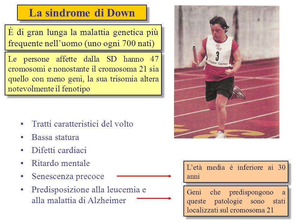 La sindrome di DownÈ di gran lunga la malattia genetica più frequente nell'uomo (uno ogni 700 nati)