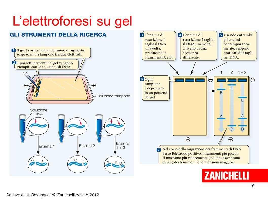 L'elettroforesi su gel