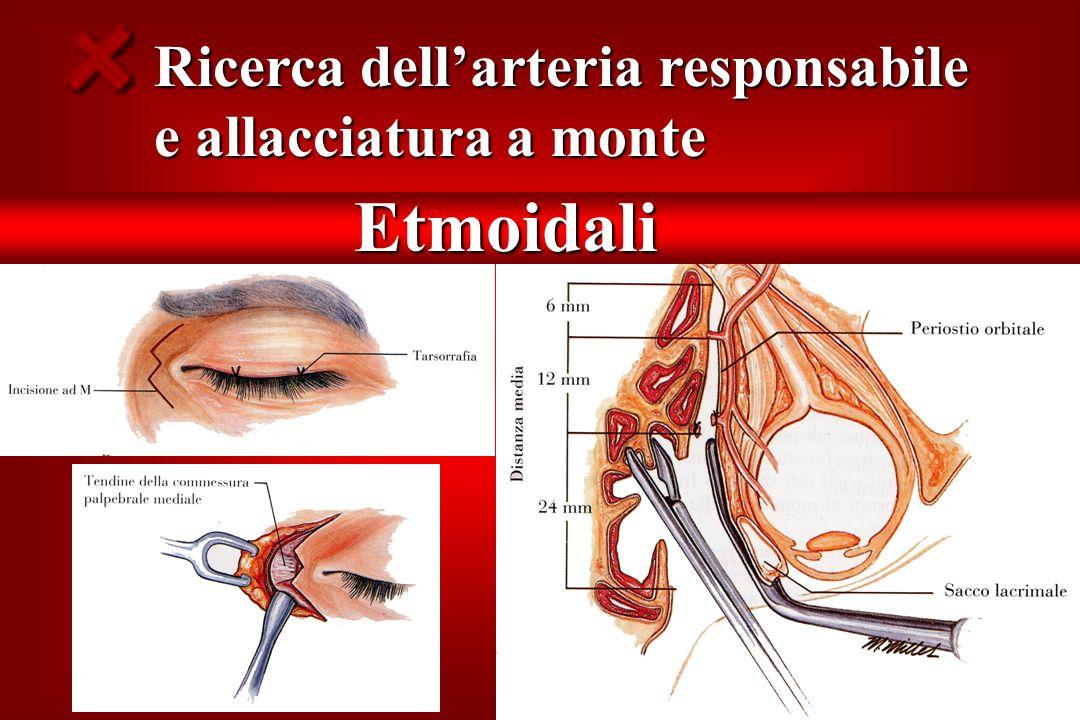 Ricerca dell'arteria responsabile e allacciatura a monte