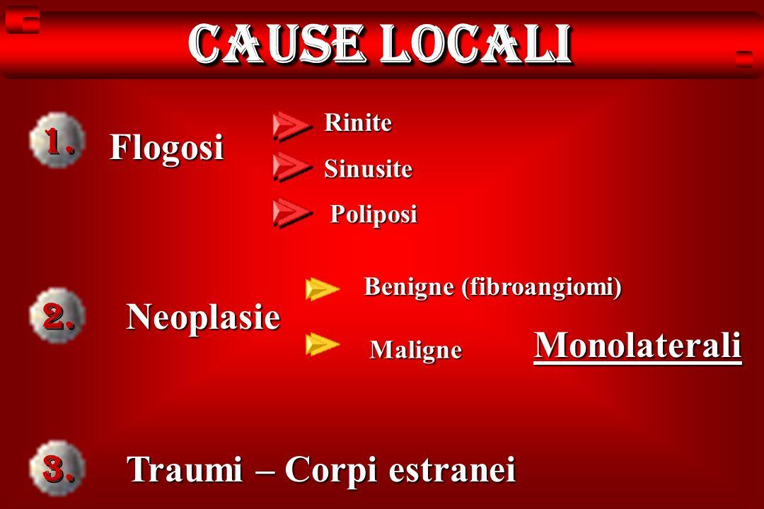 Cause locali 1. Flogosi 2. Neoplasie Monolaterali 3.