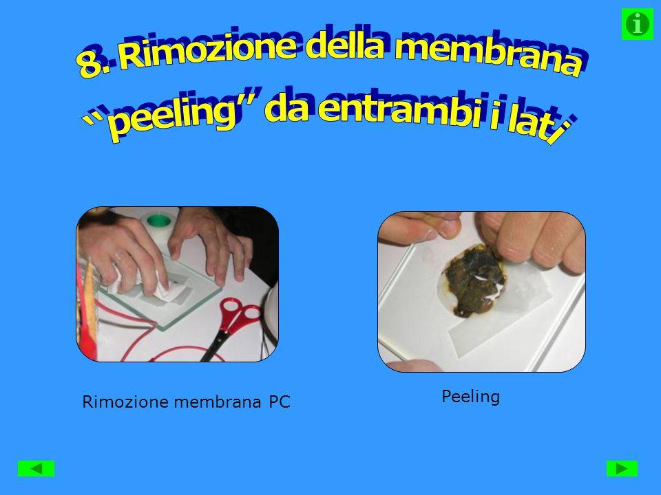 8. Rimozione della membrana peeling da entrambi i lati
