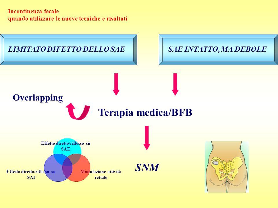Terapia medica/BFB SNM Overlapping LIMITATO DIFETTO DELLO SAE