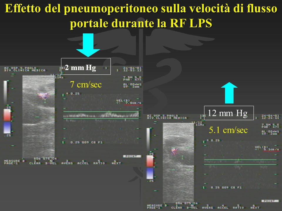 Effetto del pneumoperitoneo sulla velocità di flusso portale durante la RF LPS