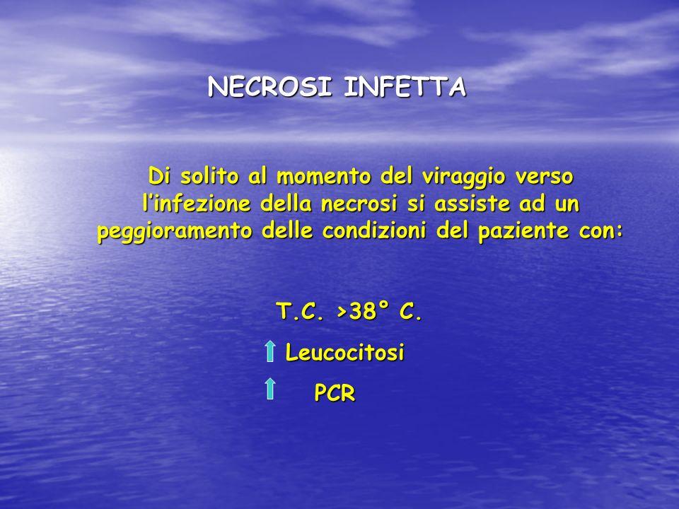 NECROSI INFETTA Di solito al momento del viraggio verso l'infezione della necrosi si assiste ad un peggioramento delle condizioni del paziente con: