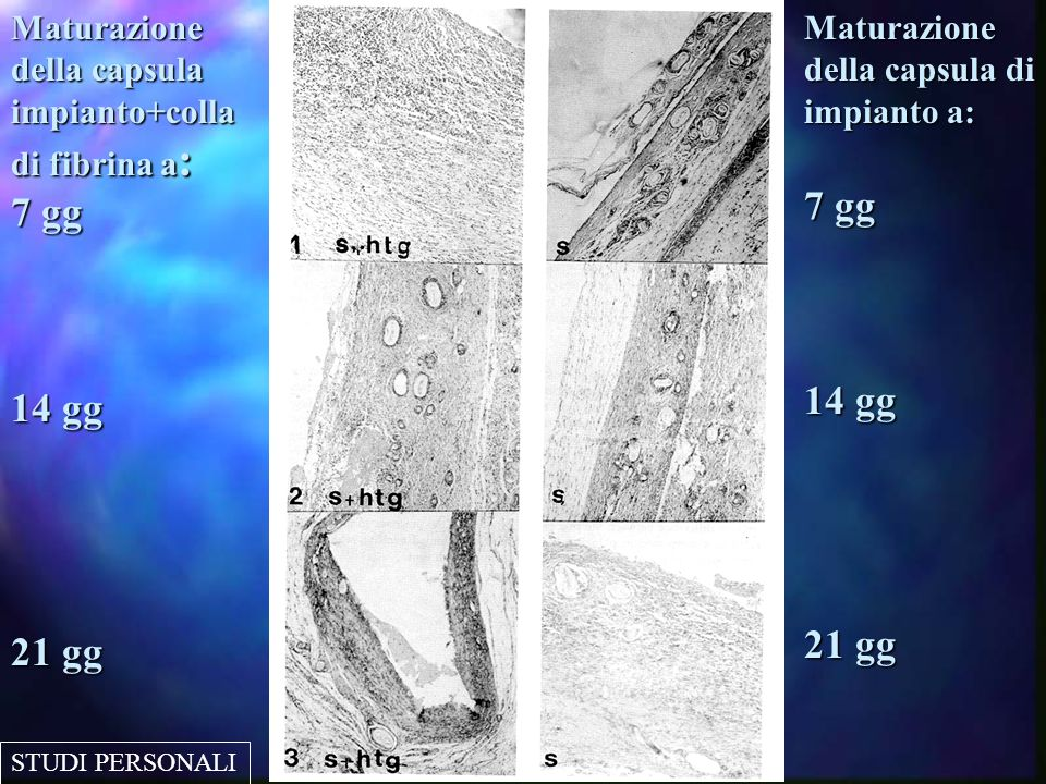 Maturazione della capsula impianto+colla di fibrina a: