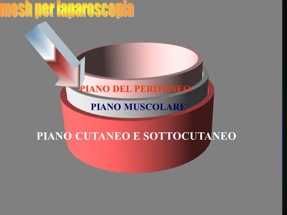 mesh per laparoscopia PIANO CUTANEO E SOTTOCUTANEO PIANO DEL PERITONEO