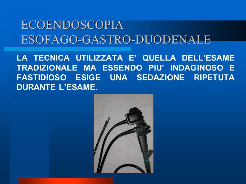ECOENDOSCOPIA ESOFAGO-GASTRO-DUODENALE