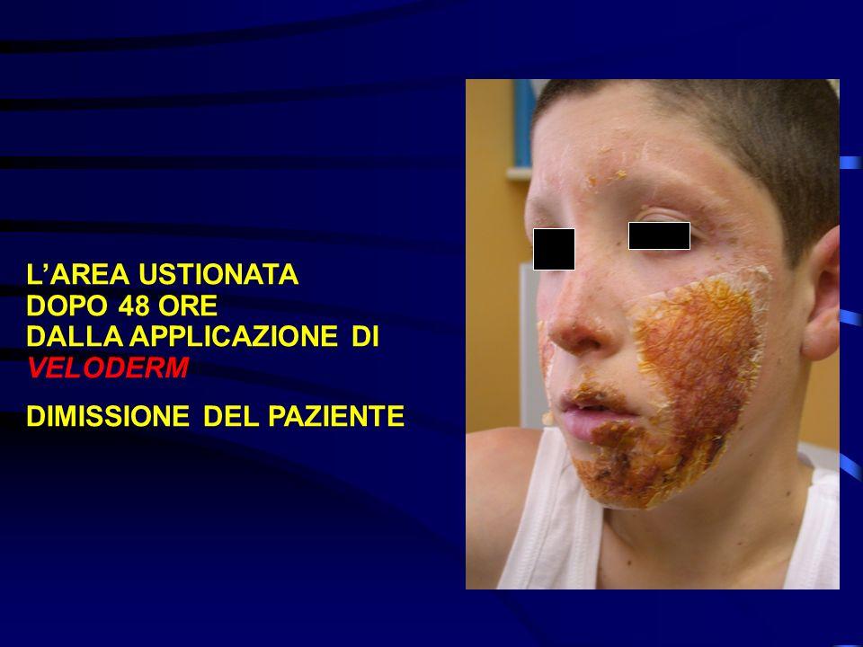 L'AREA USTIONATA DOPO 48 ORE DALLA APPLICAZIONE DI VELODERM DIMISSIONE DEL PAZIENTE