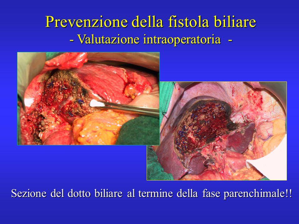 Prevenzione della fistola biliare - Valutazione intraoperatoria -